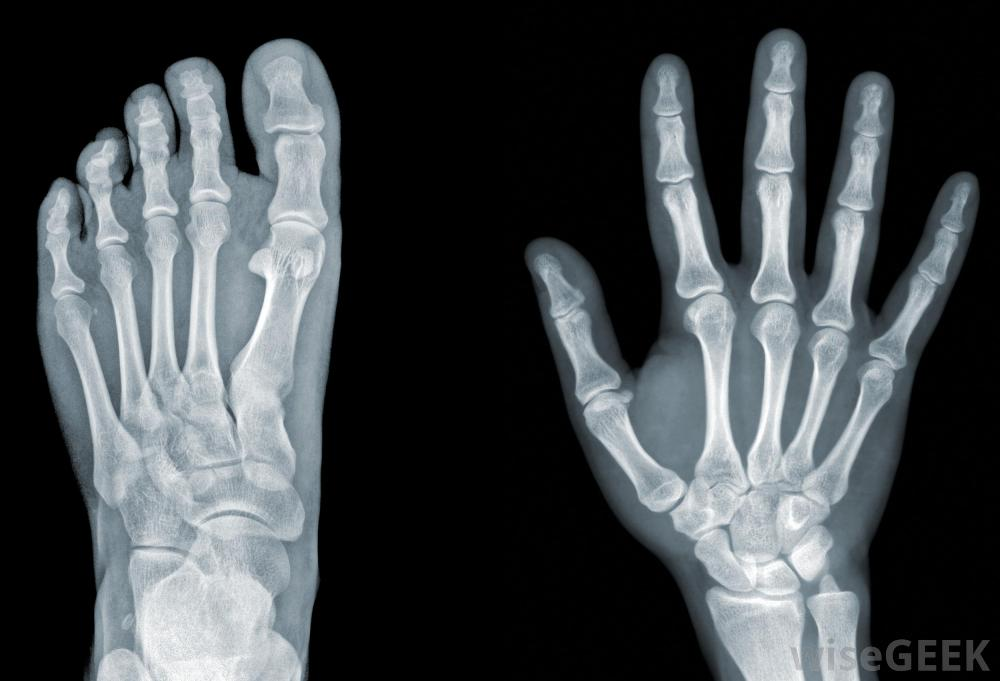 foot and hand xray